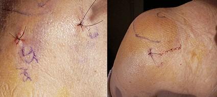 cirurgia aberta artroscopia