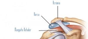 Ilustração da Tendinite do Ombro